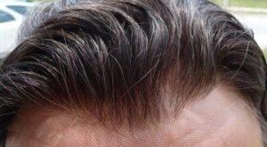 Silk Top Lace Toupee- Natural Harline – Men Balding