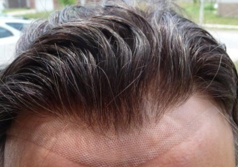 Silk Top Lace Toupee- Natural Harline – Men Balding